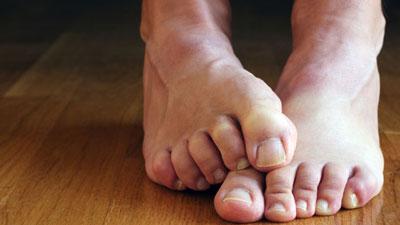سندروم پای بی قرار چیست ؟