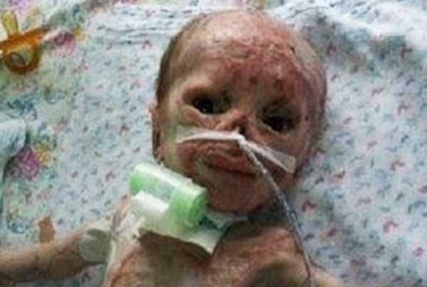 تصاویر دردناک سوختن کودک 3 روزه دردستگاه فتوتراپی