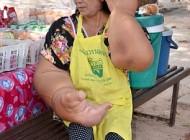 بیماری عجیب زنی با سنگین ترین دستان دنیا