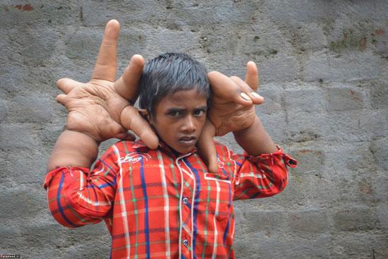 کودکی با دستان دراز و آینده ای نا مشخص