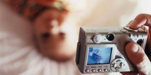 فلش دوربین چشم این نوزاد را برای همیشه گرفت