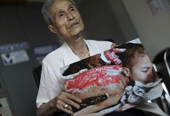 این مرد بیچاره 70 سال با این زخم ها زندگی کرد