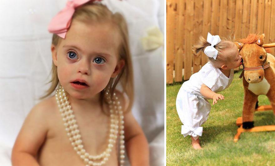 دختری 23 ماهه مبتلا به سندرم داون یک مدلینگ پر در آمد