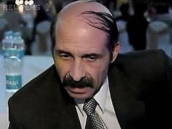 تصاویر طنز وقتی آدم کچل باشه مجبور موهاشو اینجوری بزنه