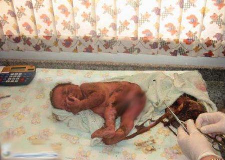نوزاد زنده به گور بعد از 1 روز زنده شد