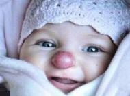 دختری که از زمان تولد شبیه دلقکها بوده!!