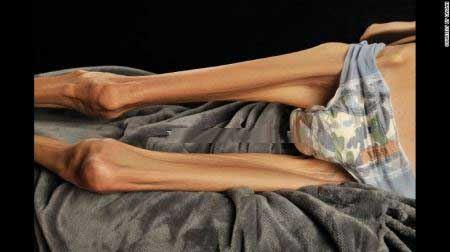 اندام جنجالی زن 37 ساله 18 کیلویی با بیماری عجیبش