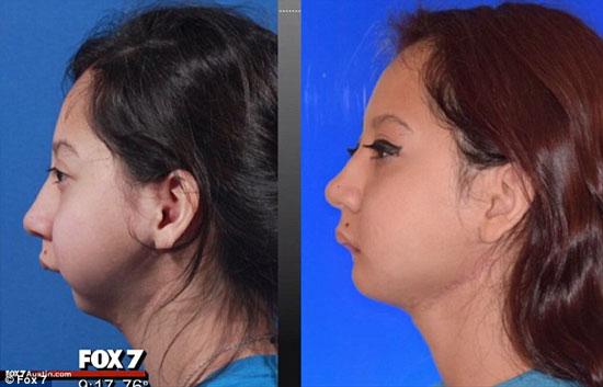 تصاویر دختر بدون فک قبل و بعد از عمل