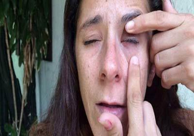 دختری که به جای قطره چشم قطره چسب در چشمانش ریخته شد! +عکس