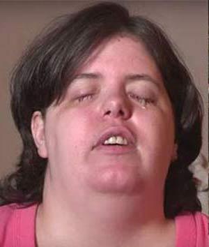 زنی که عمدا خودش را کور کرد ! + عکس
