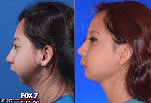 تغییر چهره دختر بدون فک بعد از عمل + عکس