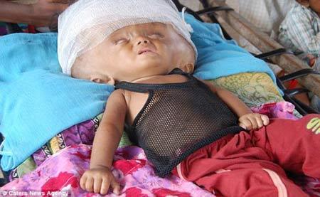 این کودک در انتظار انفجار جمجمه اش است! + تصاویر