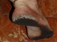 پاهای این مرد مانند کفش سفت و محکم است