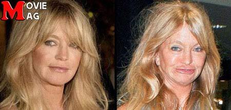 بازیگران مشهوری که بعد از جراحی پلاستیک زشت شدند