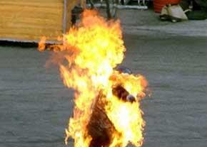 خواستگار حسود دختر جوان به آتش کشید + عکس