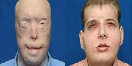 پیوند صورت و گردن بی سابقه و عجیب + عکس