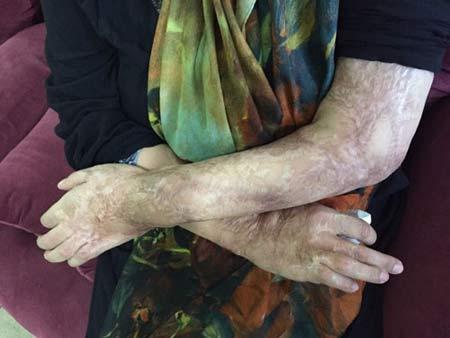 رازهای تکاندهنده از زندگی قربانیان ایرانی اسید پاشی   عکس 18