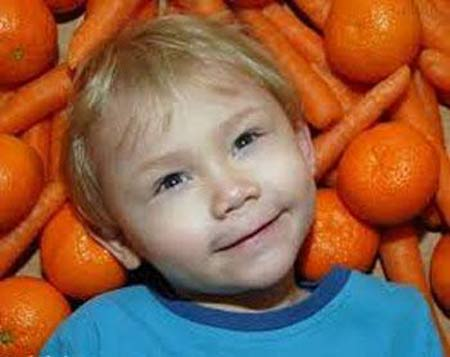 پسر زیبایی که با خوردن هویج تغییر رنگ میدهد + عکس