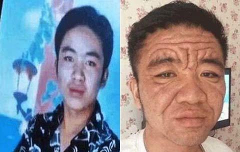 تغییر چهره ناگهانی مرد 30 ساله به پیرمرد هشتاد ساله + عکس