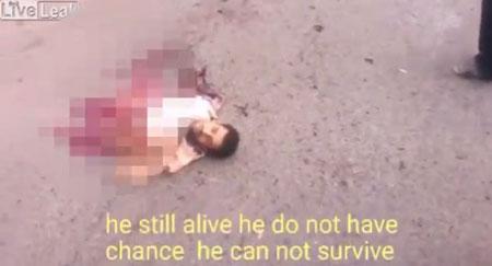زنده ماندن یک داعشی بعد از تکه تکه شدن بدنش + عکس