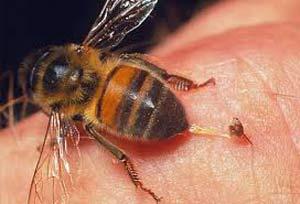 نیش زنبور دختر خوزستانی را کشت
