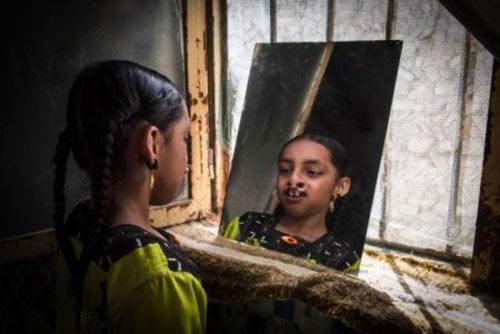 دندانهای این دختر عجیب در بینی اش است + عکس