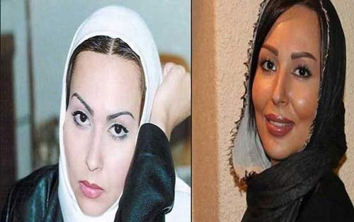 عکسهای لو رفته بازیگران زن ایرانی قبل از عمل زیبایی