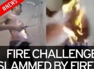 کودک 11 ساله بخاطر خودنمایی خودش را آتش زد + عکس 16+