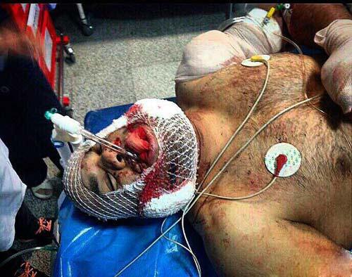 آخرین عکس  و وضعیت فریدون قنبری پس از تیر خوردن