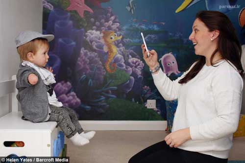 کودک زیبای بدون دستی که مدل مشهور لباس کودکان است +عکس
