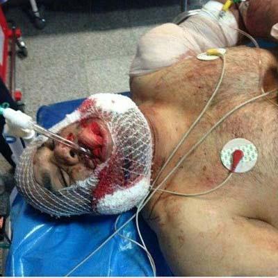 دستگیری عاملان تیراندازی به کشتی گیر ایرانی و کشف دلیل آن