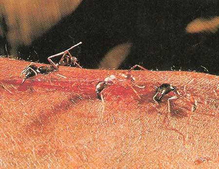 مورچه های عجیبی که بخیه جراحی میزنند +عکس