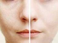 ماسکهای خانگی درمان کننده منافذ باز پوست صورت