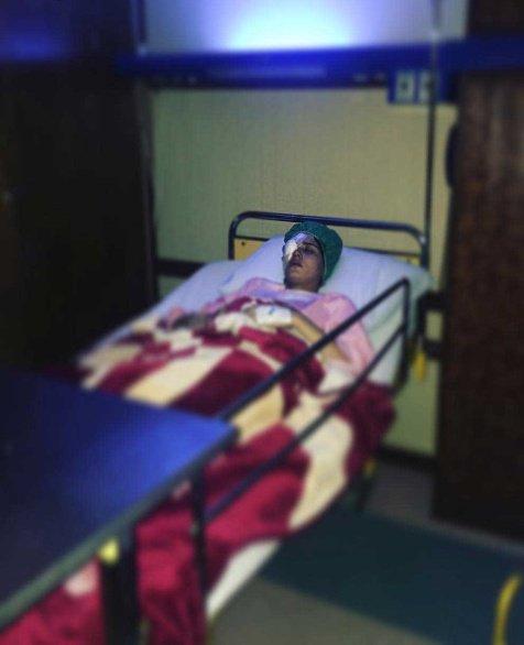 جراحی خارج کردن غده در صورت بازیگر زن ایرانی + عکس