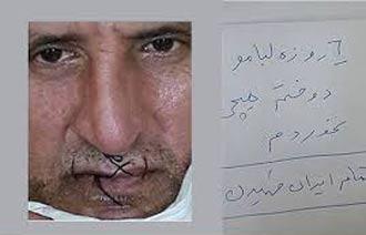 بازیکن مشهور پرسپولیس در اعتراض به فساد دهانش را دوخت +عکس