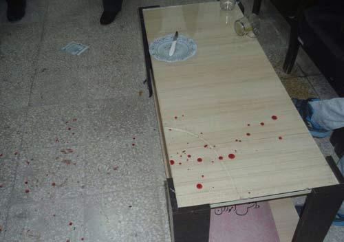ضرب و شتم معلم دبستان بدست پدر دانش آموز + عکس