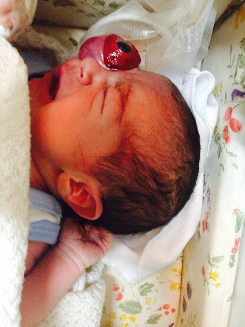 جراحی نوزاد اصفهانی که با چشم از حدقه بیرون متولد شد+عکس18+
