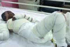 اسیدپاشی دختر جوان روی آلت یک مرد برای پخش فیلم غیراخلاقیش +عکس