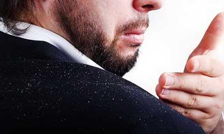 راهکارهایی برای درمان سریع شوره سر