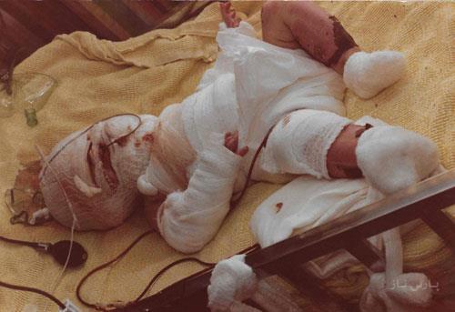 نجات عجیب نوزادی که در ظرف پر از روغن سرخ شد +عکس 16+