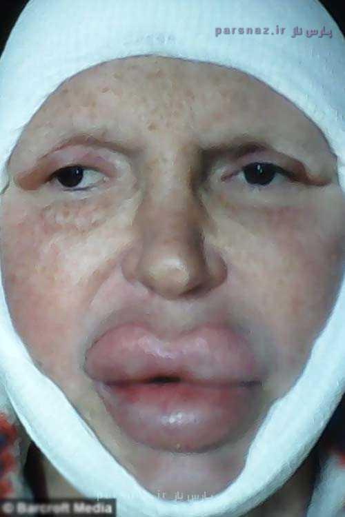 تغییر جنسیت دیدنی این مرد و اعتیادش به جراحی پلاستیک +عکس