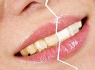 راه ارزان و ساده سفید کردن دندانهای زرد در خانه