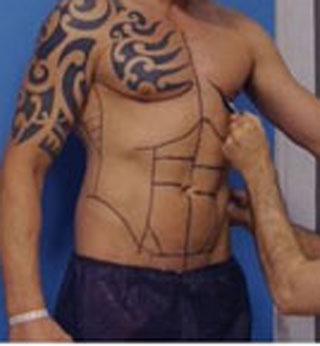 جراحی پلاستیک 300 هزار دلاری این مرد برای شکم شش تکه +عکس