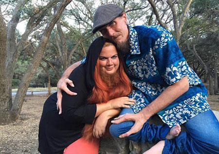 ازدواج جالب و عاشقانه مرد خرچنگی و زن ریشو +عکس