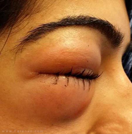 کور شدن یک زن بخاطر فین کردن شدید +عکس