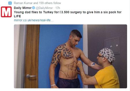 جراحی پلاستیک 300 هزار دلاری این مرد برای شکم شش تکه