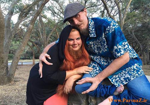 ازدواج عجیب زن ریش دار با مرد خرچنگی (عکس)