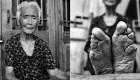 عکس های دیدنی و عجیب از زنان پا کوچک در چین