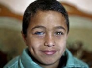 کودکی فلسطینی با چشمانی دو رنگ متفاوت +عکس