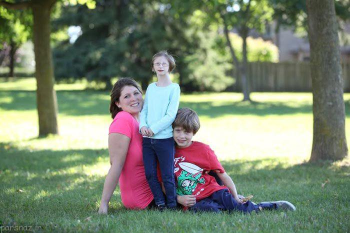 بیماری کوتولگی برای دختر بند انگشتی